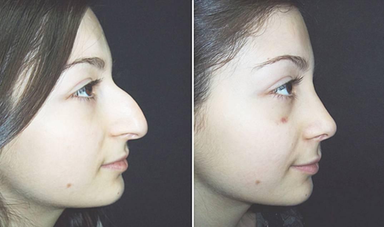 синяк на носу как избавиться
