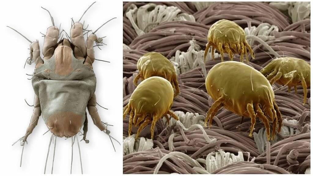 Аллергия на глистов – почему возникает и как бороться