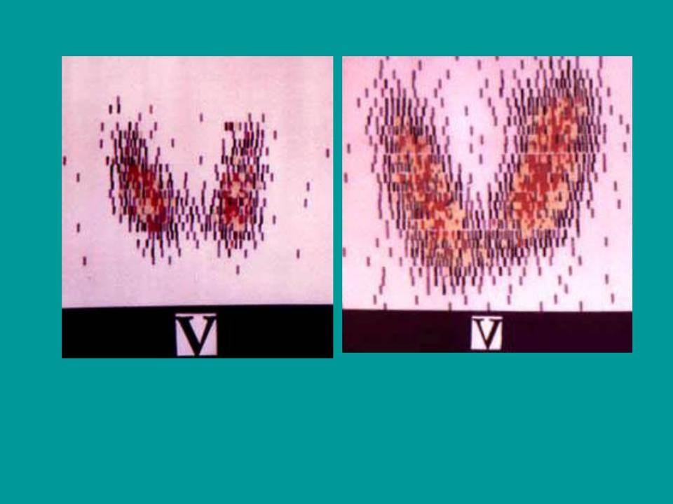 сканирование щитовидной железы