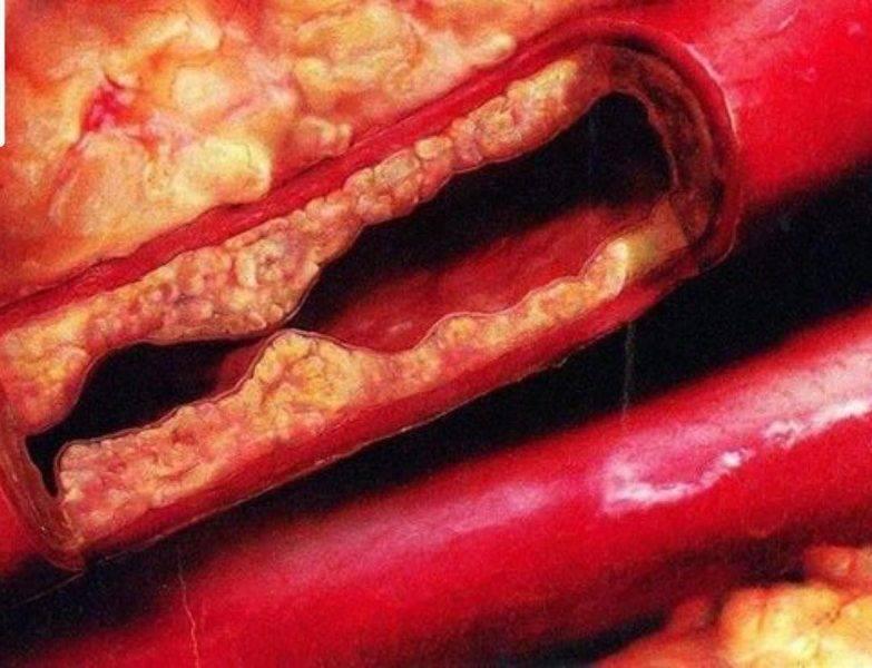 Холестериновые бляшки на веках или ксантелазмы (ксантомы) — что это?