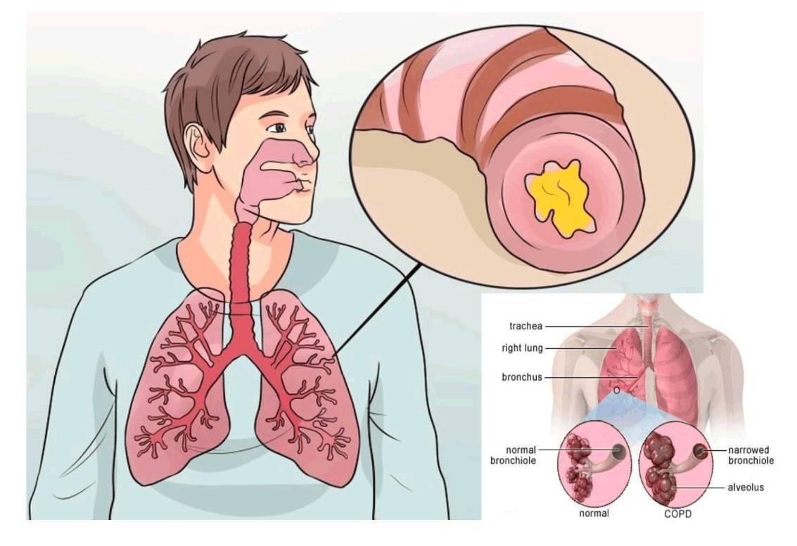 как вылечить мокрый кашель