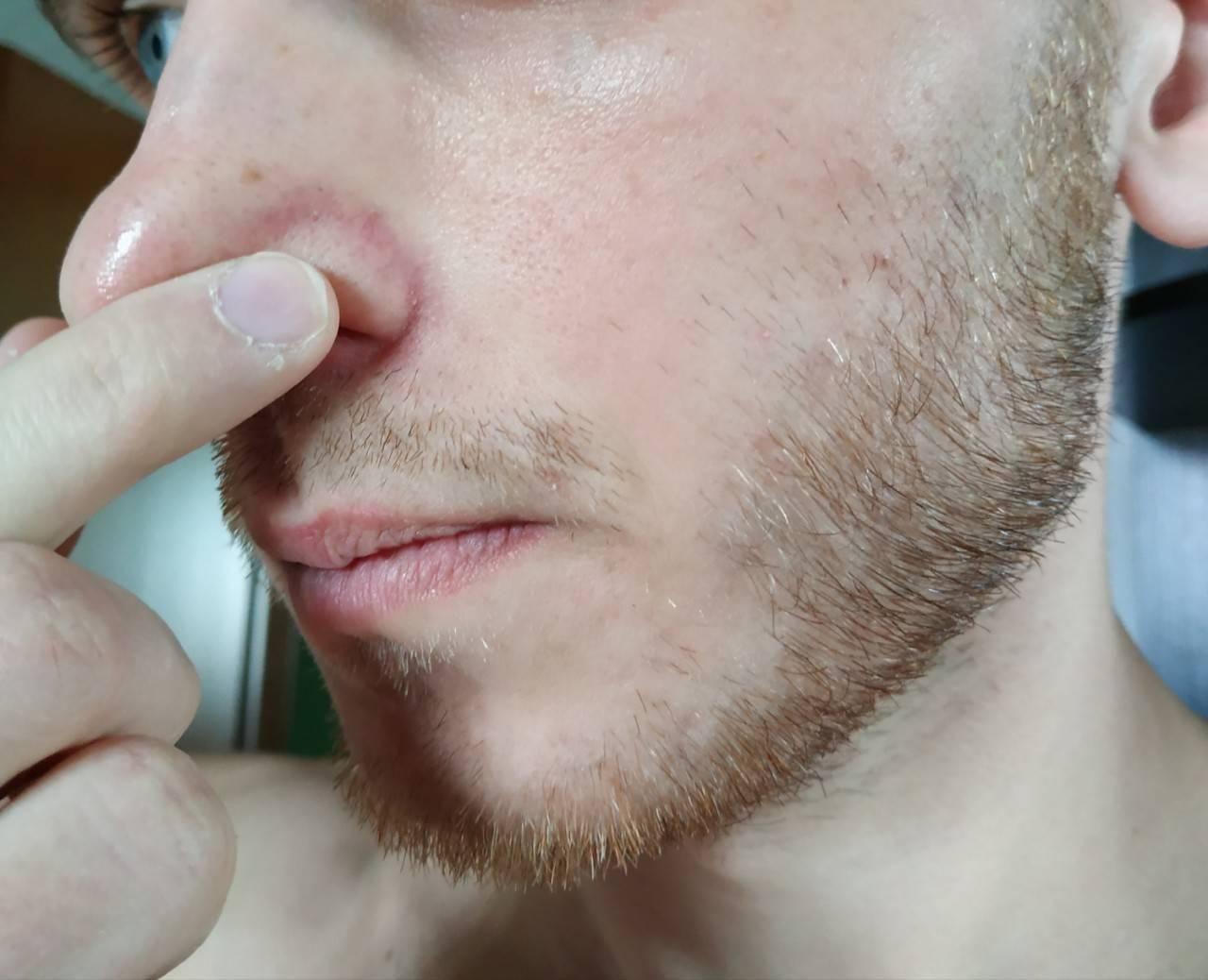 гнойный прыщ в носу