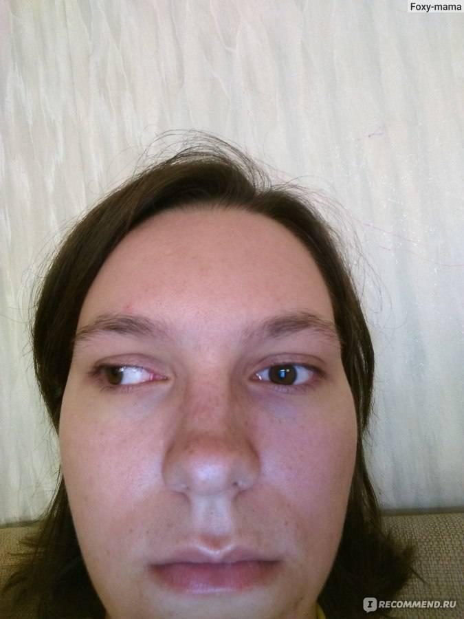 лечение косоглазия лазером