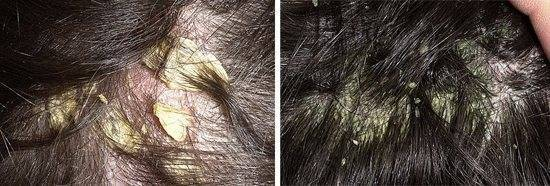 себорейный дерматит кожи головы причины
