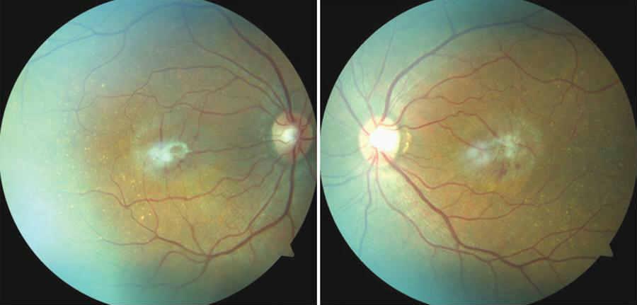 эпиретинальный фиброз сетчатки глаза