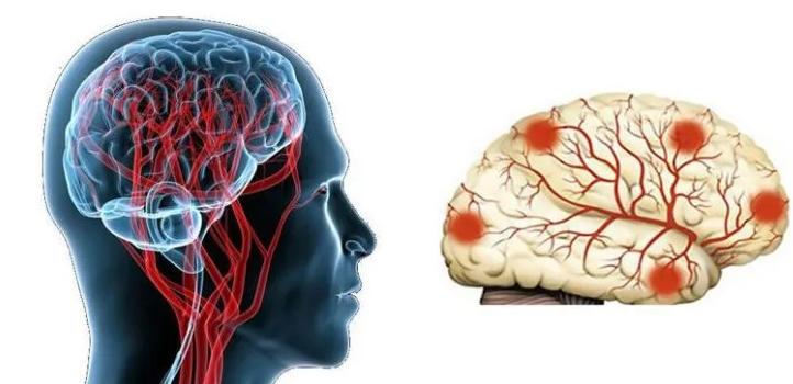 Токсическая энцефалопатия: причины, формы и их особенности, проявления, как лечить