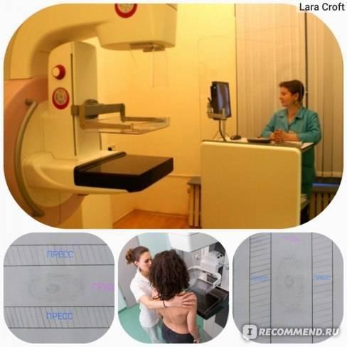 Как и зачем проходить маммографию молочной железы