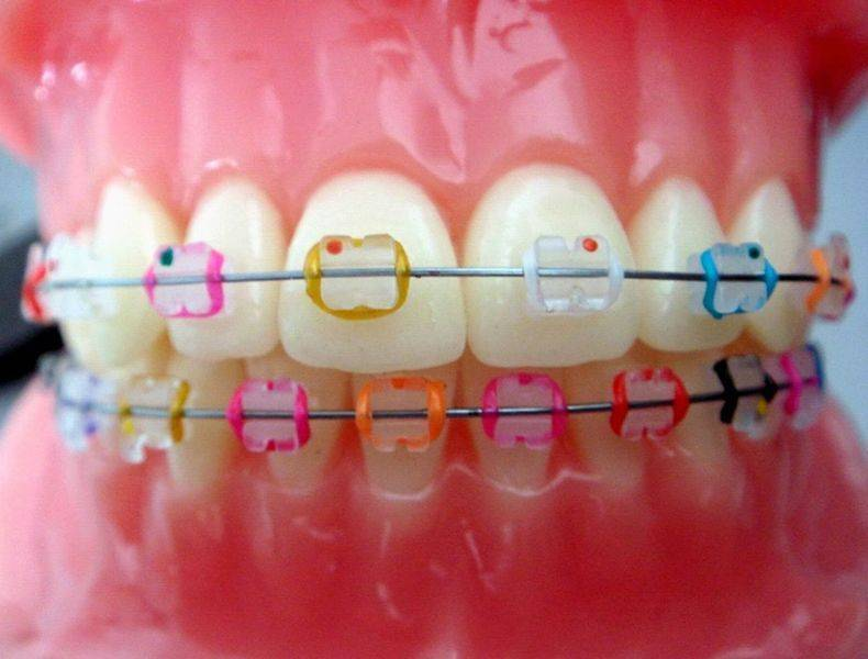 Как подобрать лигатурные брекеты?