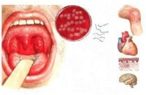 Заразна ли гнойная ангина: общие признаки заболевания и лечение