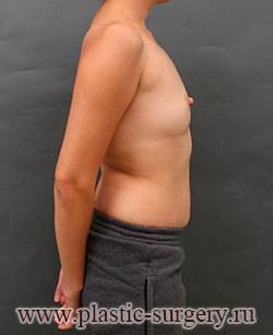 Рак вылечили, а грудь испортили: фото после реконструкции груди. реконструктивная маммопластика, фото