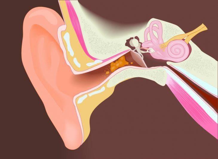 Как убрать серную пробку из уха: лечение и профилактика