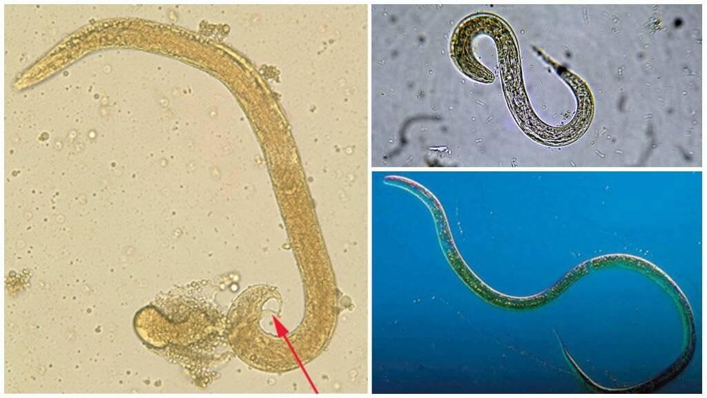 анализ на стронгилоидоз