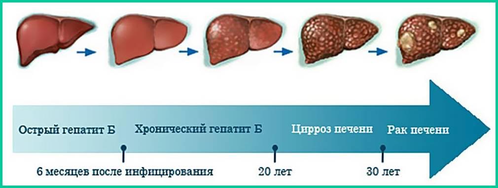 Боли в области печени - причины, характер, диагностика, лечение