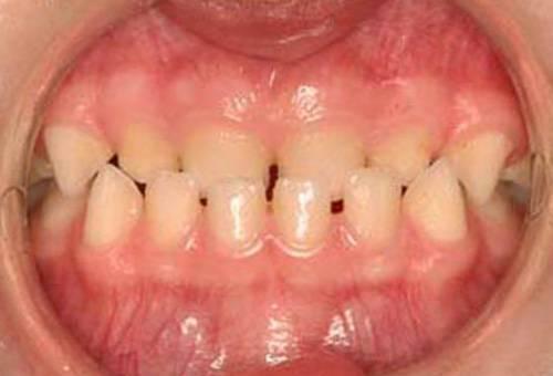 Зубная формула у взрослого человека и ребенка