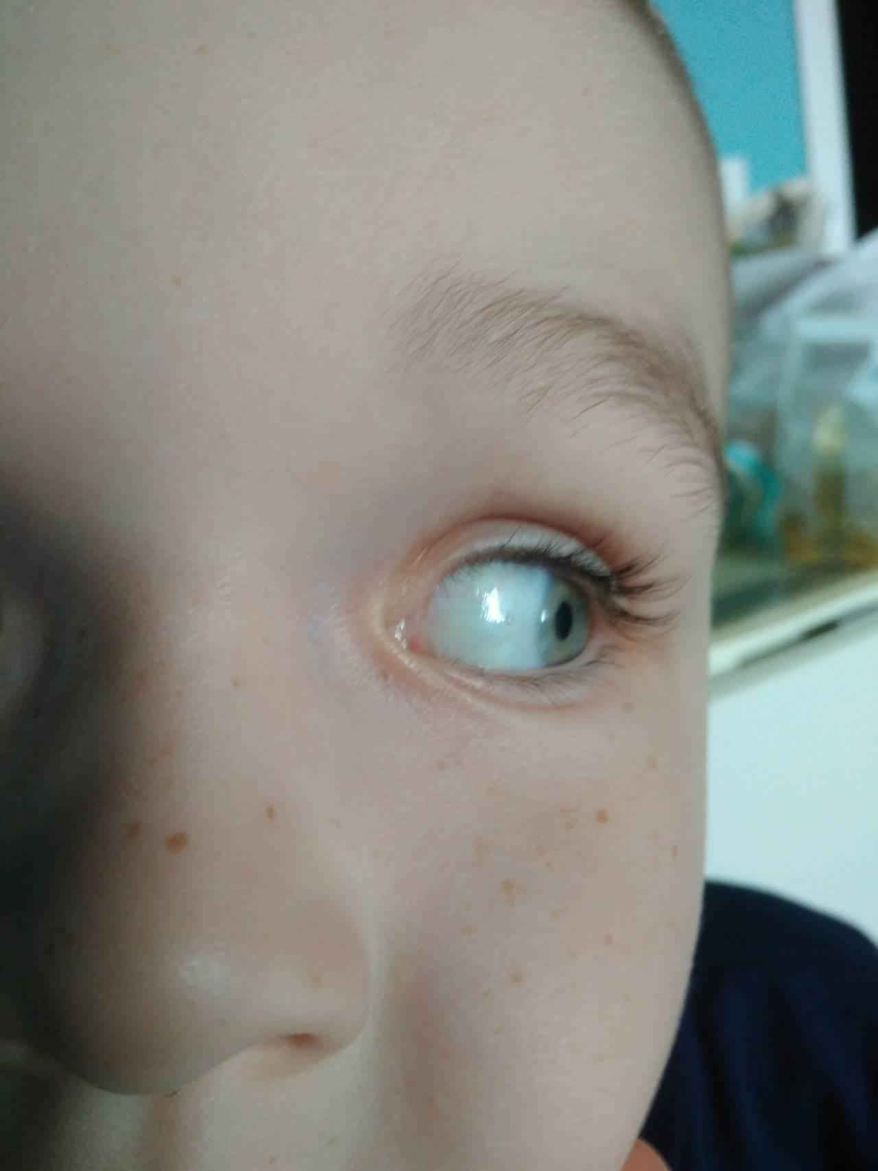 Прозрачные пузырьки на глазу