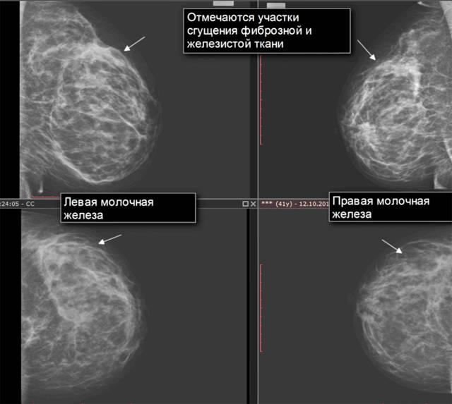 Фиброзная мастопатия молочных желез. признаки фиброзной мастопатии