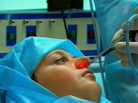 вазотомия носа что это такое