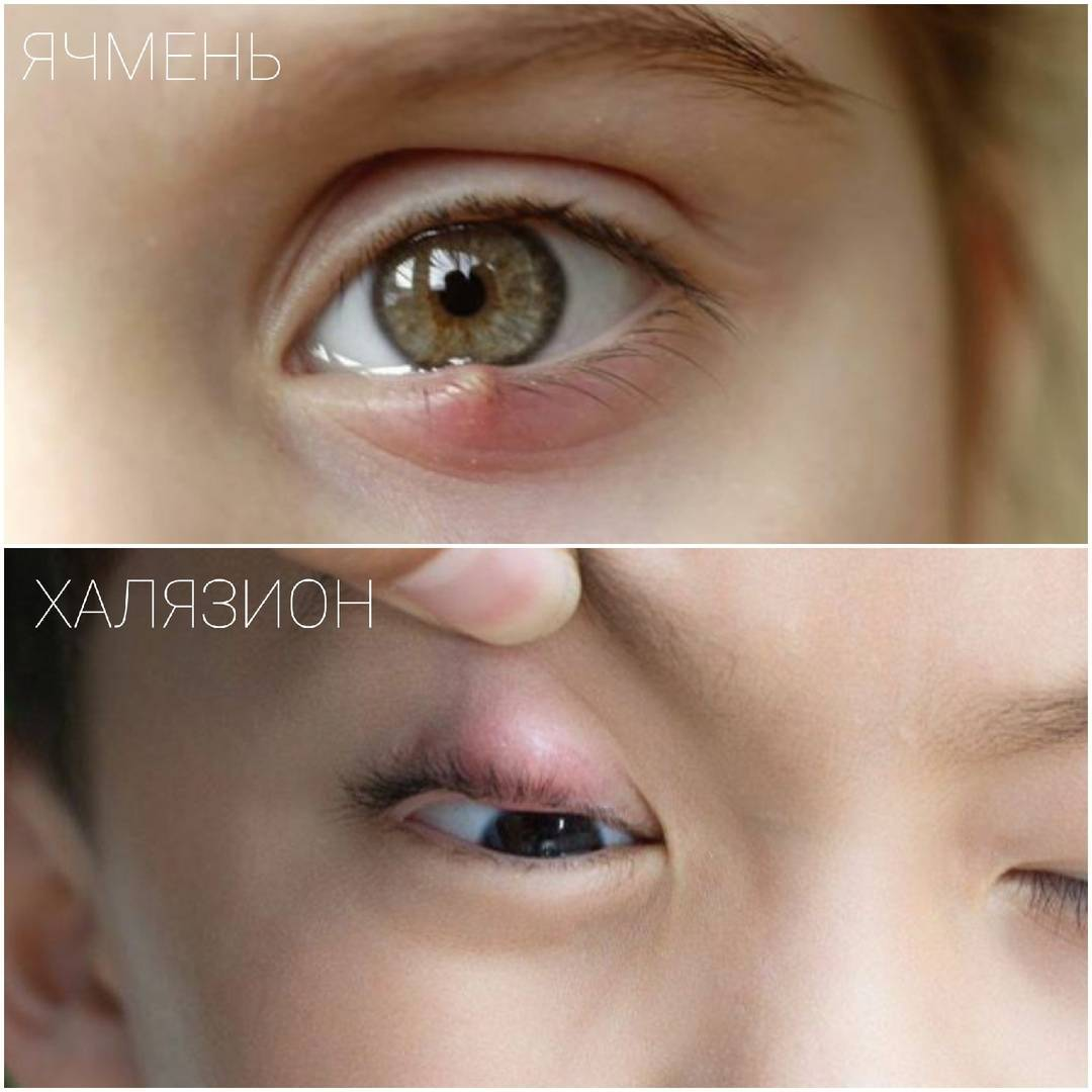 Ячмень на глазу у ребенка лечение – комаровский о причинах и лечении дома