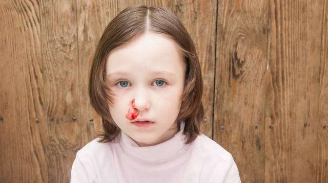 Причины и профилактика ночных носовых кровотечений