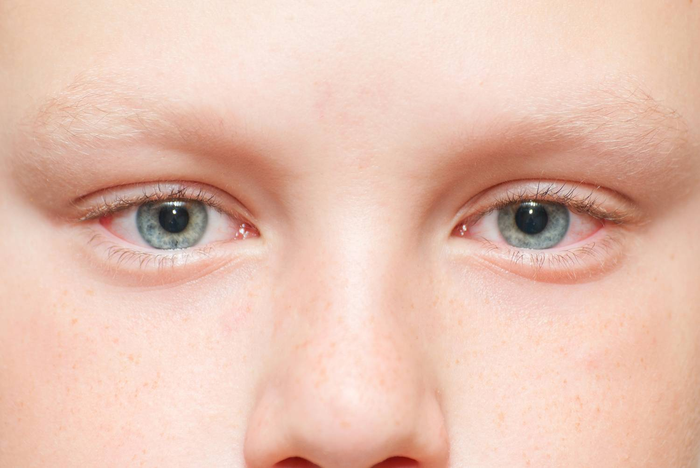 Загадка нашего тела: почему мы так часто моргаем? частое моргание глазами у взрослых: офтальмологические или неврологические причины.