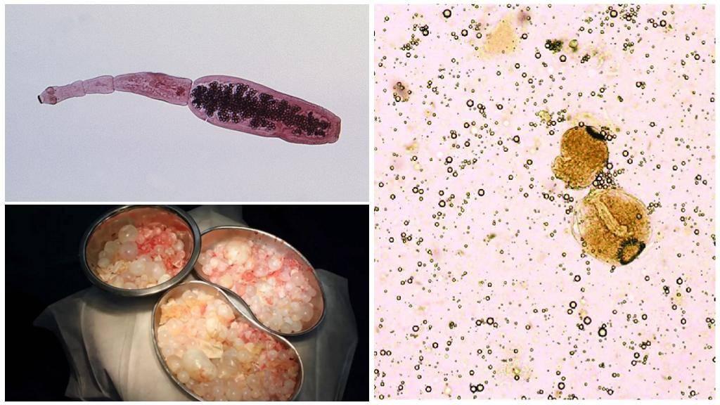 Эхинококкоз - симптомы болезни, профилактика и лечение эхинококкоза, причины заболевания и его диагностика на eurolab