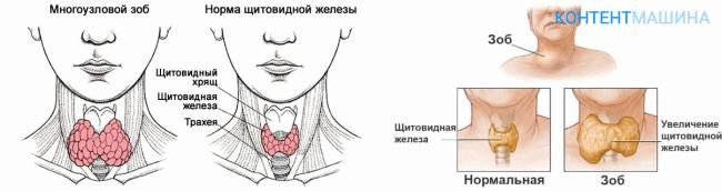 Удаление щитовидной железы, тиреоидэктомия: операция, её проведение, реабилитация и последствия
