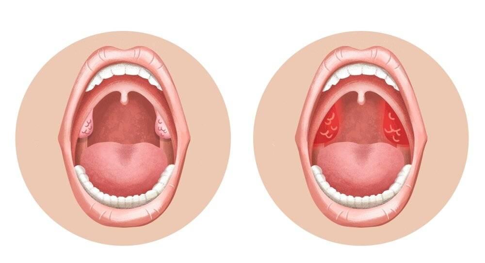 Передается ли тонзиллит через поцелуй