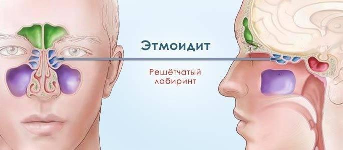 этмоидит симптомы