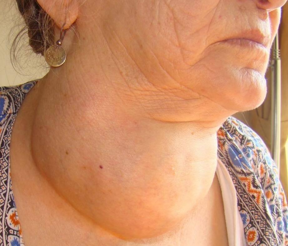 Симптомы и лечение многоузлового зоба щитовидной железы