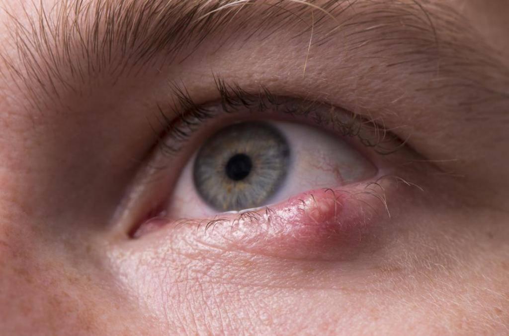 Гноятся глаза: 10 распространенных причин