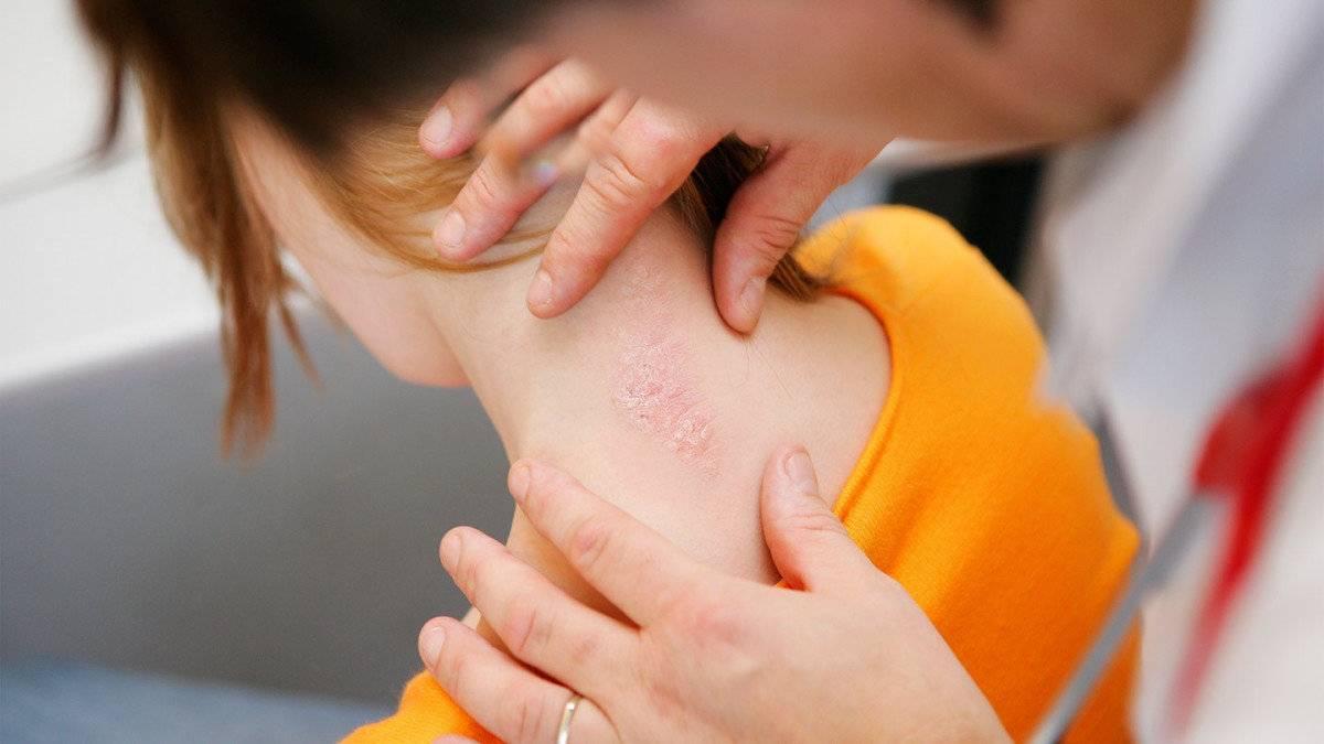 первые признаки псориаза у детей
