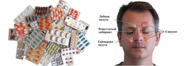 Антибиотики при гайморите: лечение у взрослых и детей