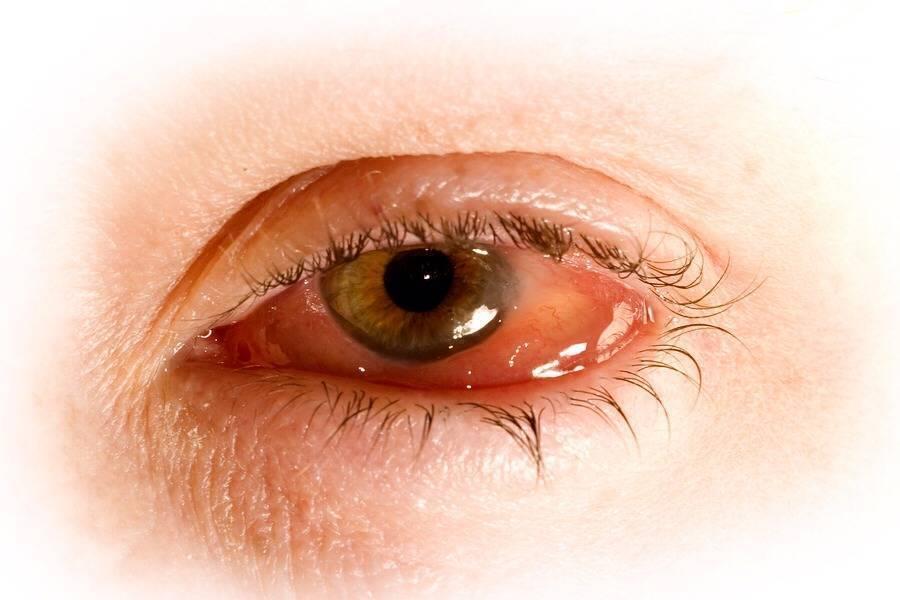 Хламидии в глазах — проявления болезни и методы лечения