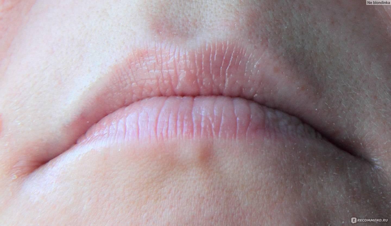 Простуда на губах (герпес) — лечение народными средствами