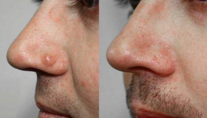 Симптомы и лечение рака носовой пазухи