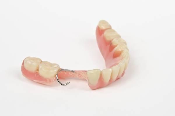 Плюсы и минусы покрывных зубных протезов и их классификация