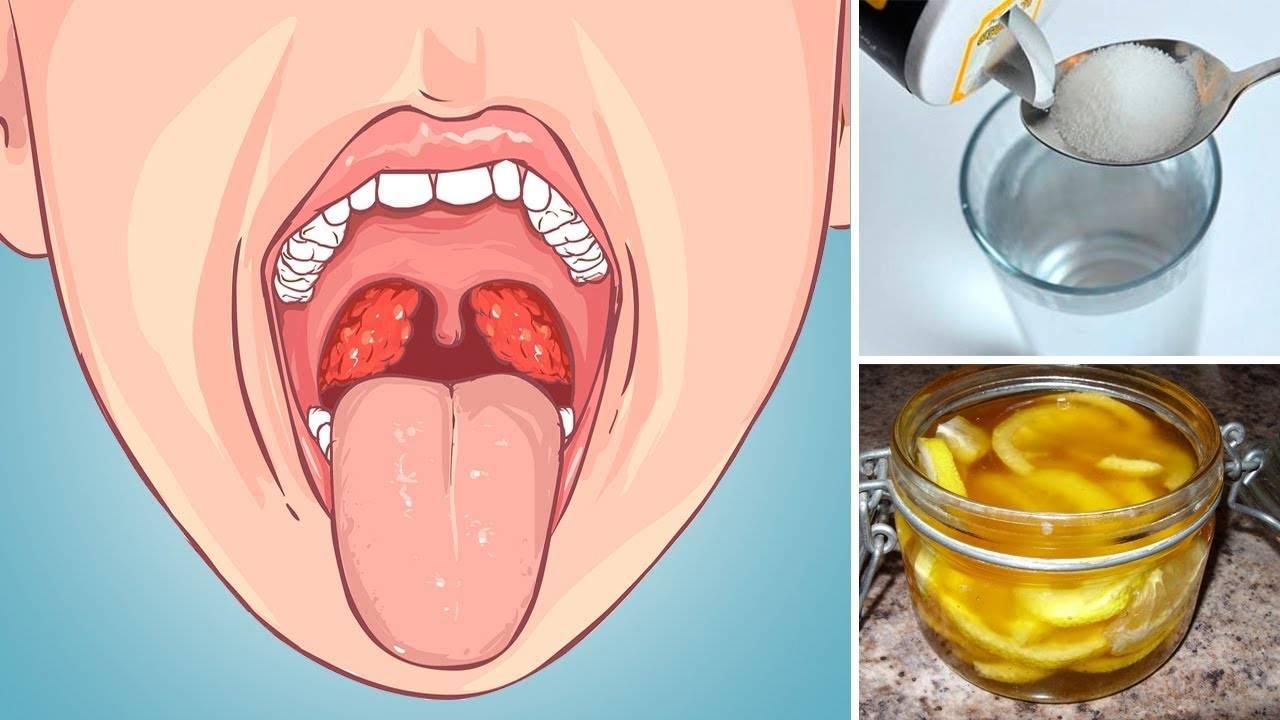 лечение горла в домашних условиях у детей