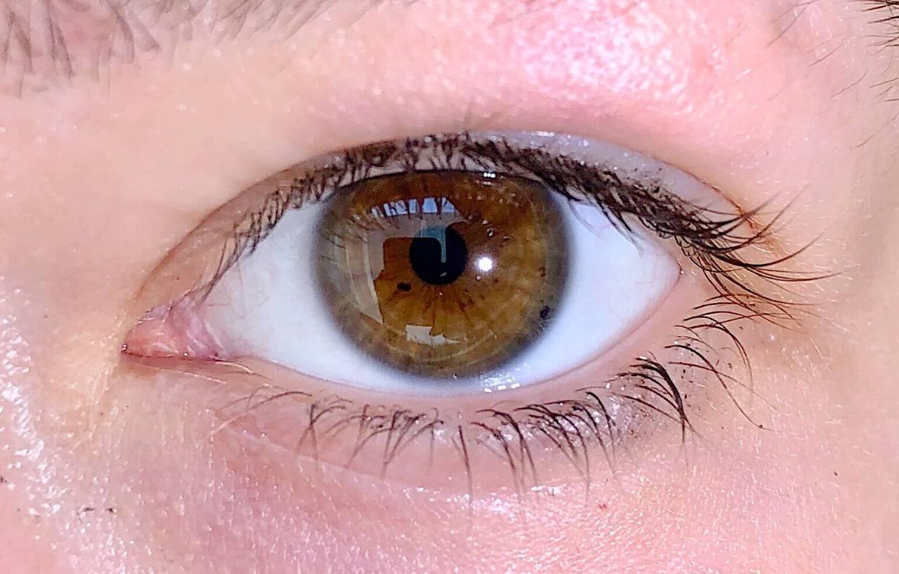 темные пятна в глазах