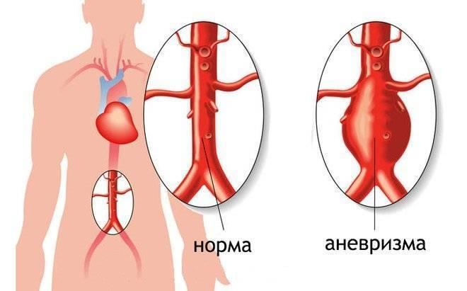 атеросклероз брюшной аорты симптомы