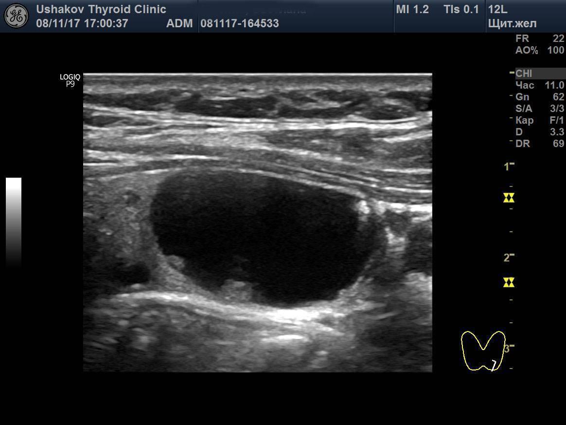 Киста щитовидной железы — причины образования