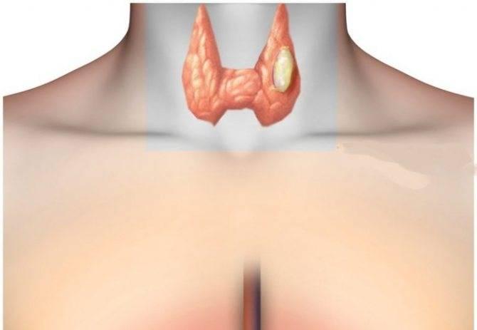 Когда назначают гормоны щитовидки в таблетках и как ими лечиться