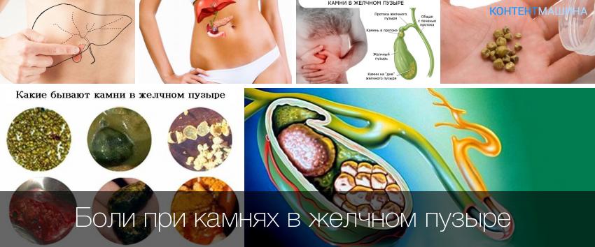 камни в желчном пузыре и беременность