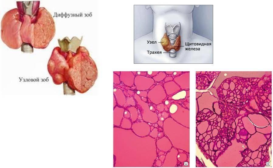 диффузно узловой зоб щитовидной железы