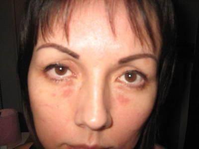 красные пятна возле глаз