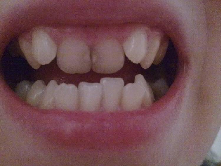 первые зубы криво растут
