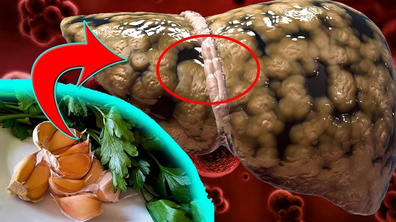 Как вывести паразитов из печени