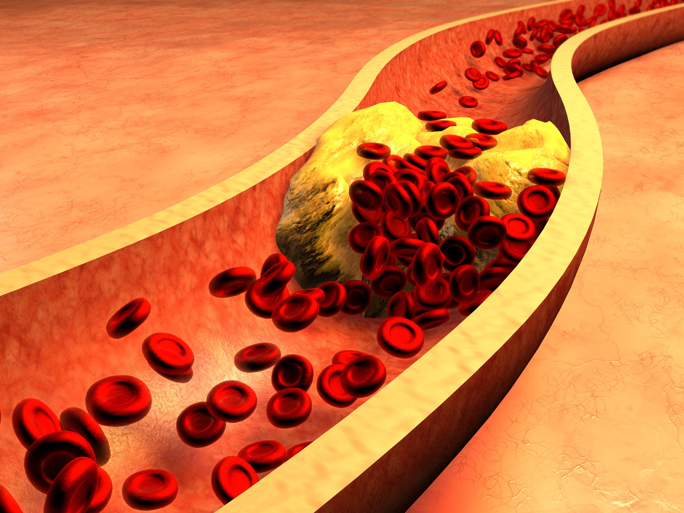 Атеросклероз коронарных артерий — причины, факторы риска, симптомы, диагностика, гаджеты для контроля холестерина, лечение