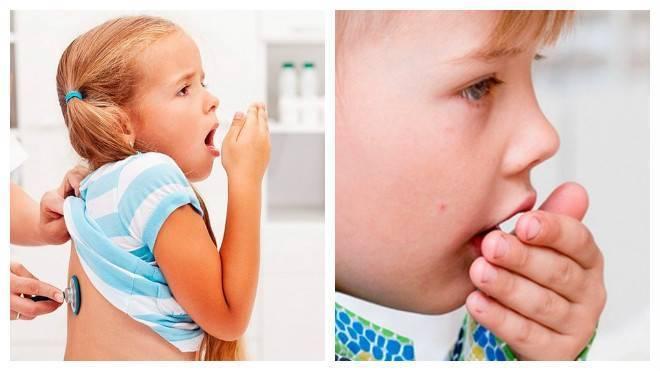 Аллергический кашель у ребенка — причины, симптомы и лечение, народные средства