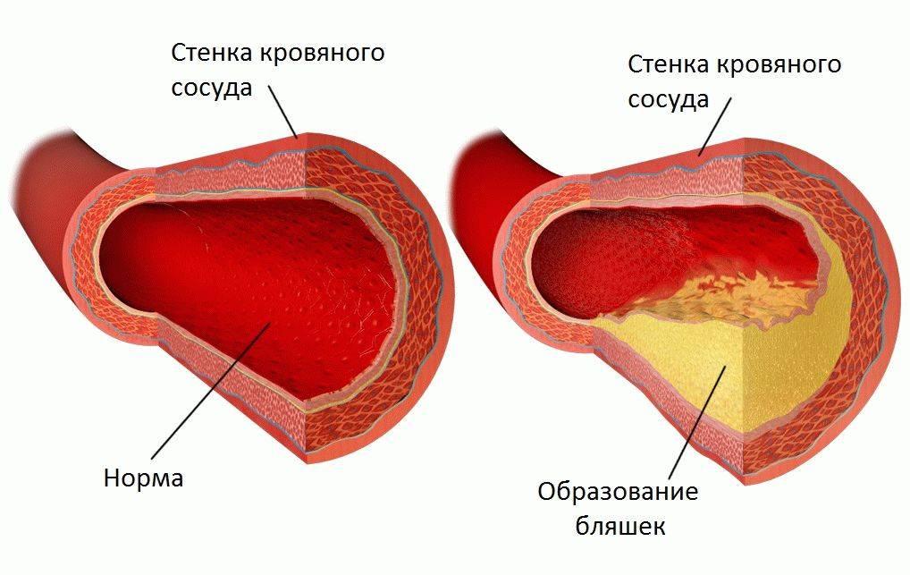 Как растворить холестериновые бляшки в сосудах? причины появления и чем они опасны?