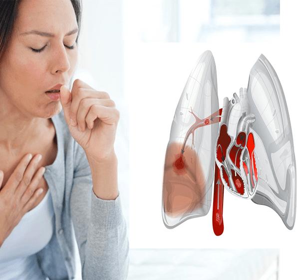 сердечный кашель причины